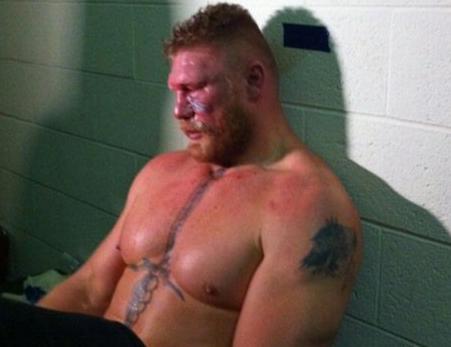 O que muda no UFC com a doença de Brock Lesnar