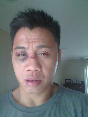 Cung Le and the damages after facing Wanderlei