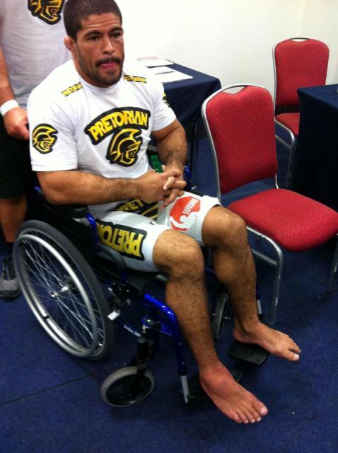 Rousimar Toquinho com o pé quebrado. Foto: Arquivo Pessoal