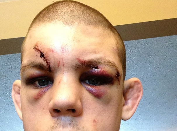 Joe Lauzon's Post-UFC 155 Instagram Pictures Tell Tale of Bloody War