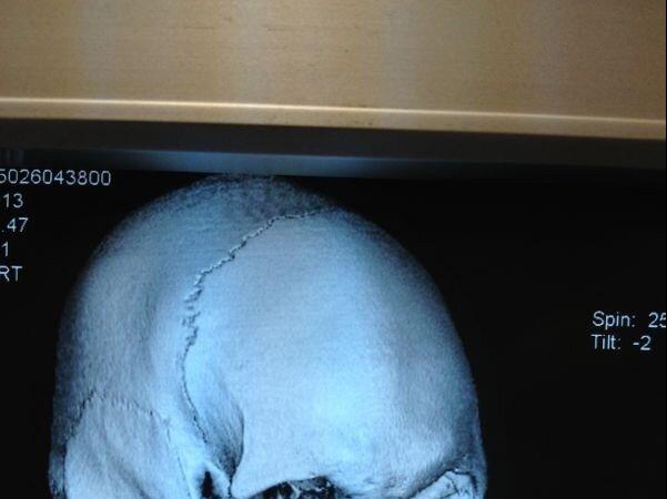 Check out the broken jaw Mark Hunt gave Stefan Struve at UFC on Fuel TV 8