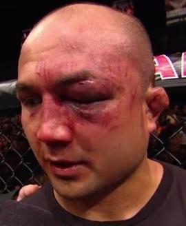 BJ Penn e seu olho roxo, cortesia da direita de Nick Diaz. Foto: UFC/Divulgação
