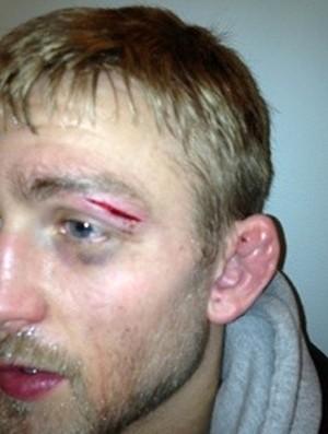 Gustafsson comenta lesão que o tirou do UFC na Suécia e publica foto