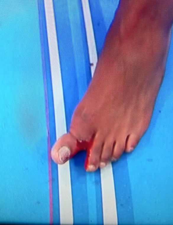 Dedo aparentemente quebrado de Jon Jones após a luta. Foto: Reprodução/Twitter