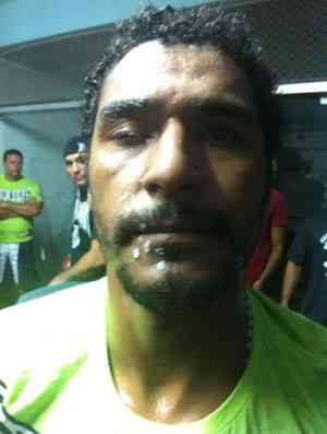 The day a drop of glue ended a MMA fight in Brazil
