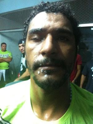 Carlos Alberto Lobo com o olho direito colado. Foto: Ana Hissa/SporTV.com