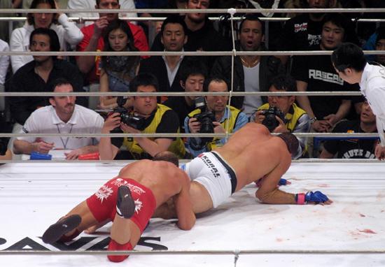 Antes de Anderson Silva: lembre outras 5 contusões que marcaram o MMA