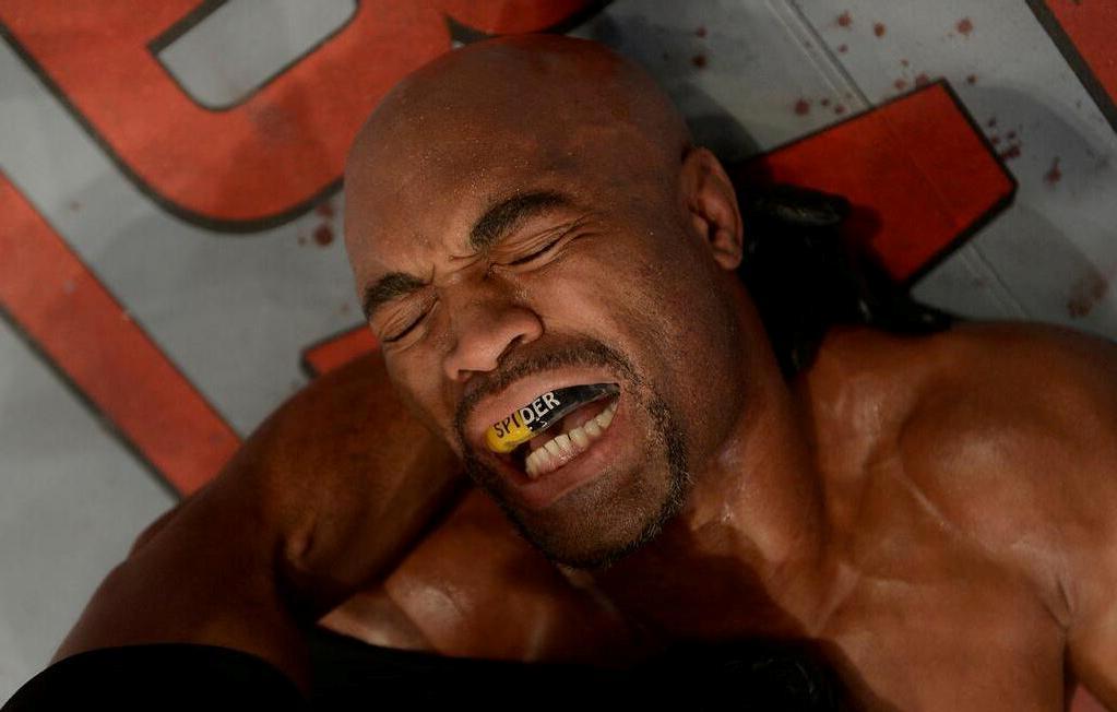Anderson Silva momentos após sofrer  a lesão no UFC 168. Foto: Divulgação
