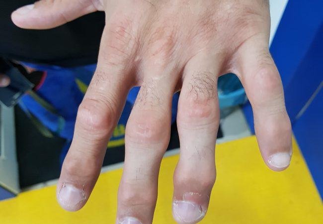 9 dicas para você lidar com as dores nos dedos após o Jiu-Jitsu